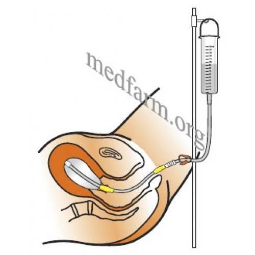 Использование катетера фолея в гинекологии для раскрытия шейки матки
