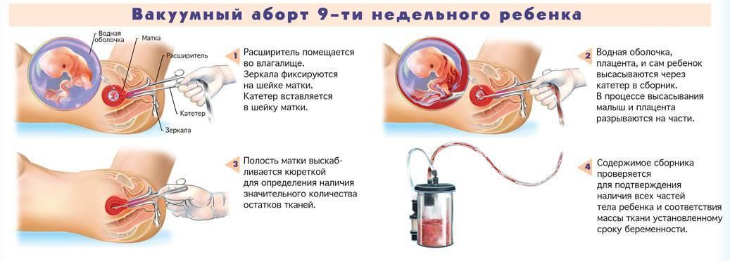 Нежелательная беременность - что делать?