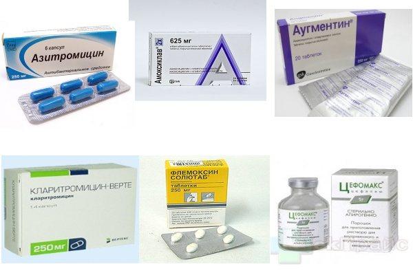 Лечение отита у детей антибиотиками – какие принимать