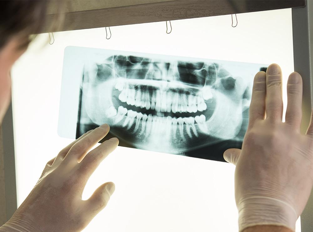 Рентген при беременности: когда можно проводить диагностику
