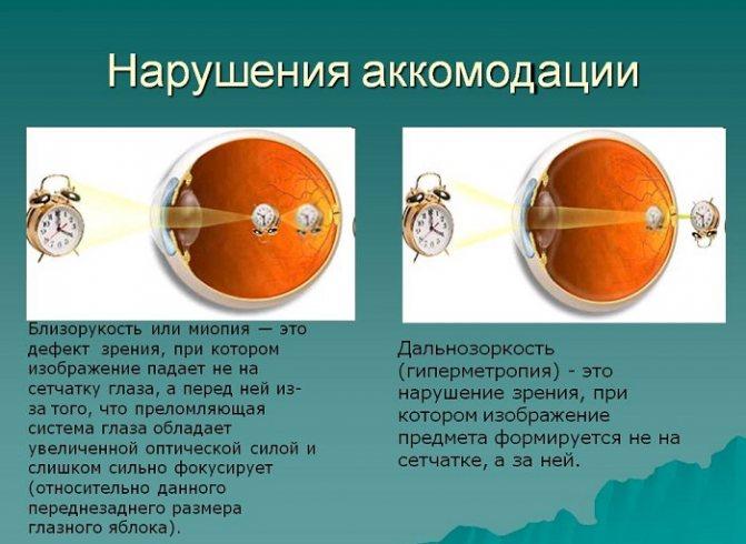 Что такое спазм аккомодации глазных мышц