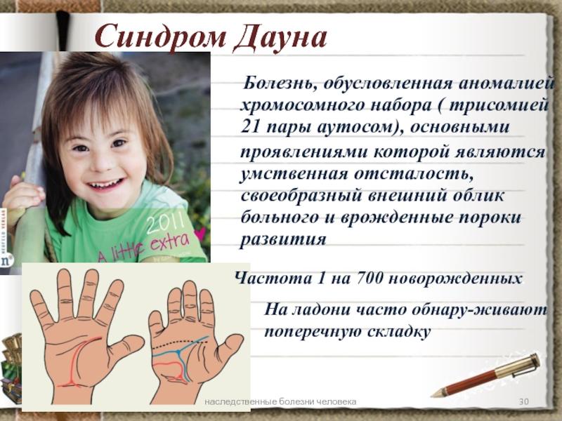 Ребенок с синдромом дауна (59 фото): признаки, какой получают уровень образования, причины у новорожденного, сколько живут и могут ли родиться здоровые дети
