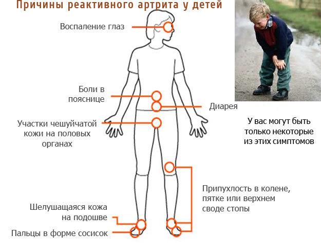 Об особенностях течения, лечения и профилактики детского реактивного артрита рассказывает врач-педиатр, к.м.н.