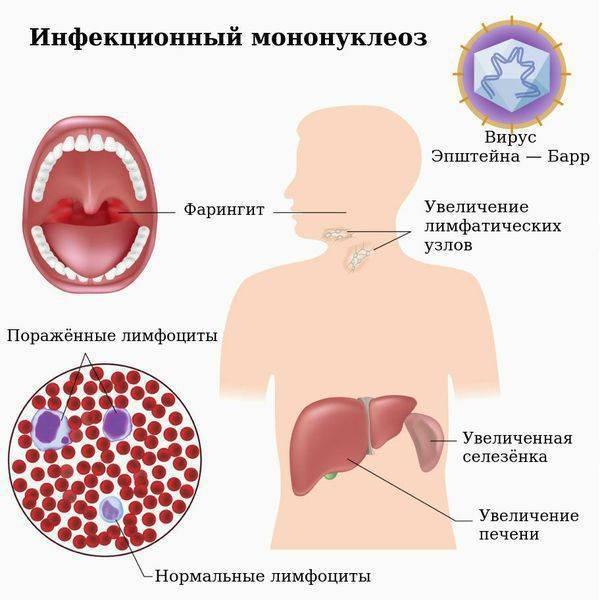 Диета при мононуклеозе и гепатите у детей