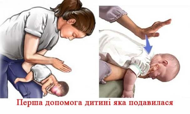 Ребенок подавился - советы и рекомендации как действовать и оказывать помощь при освобождении дыхательных путей