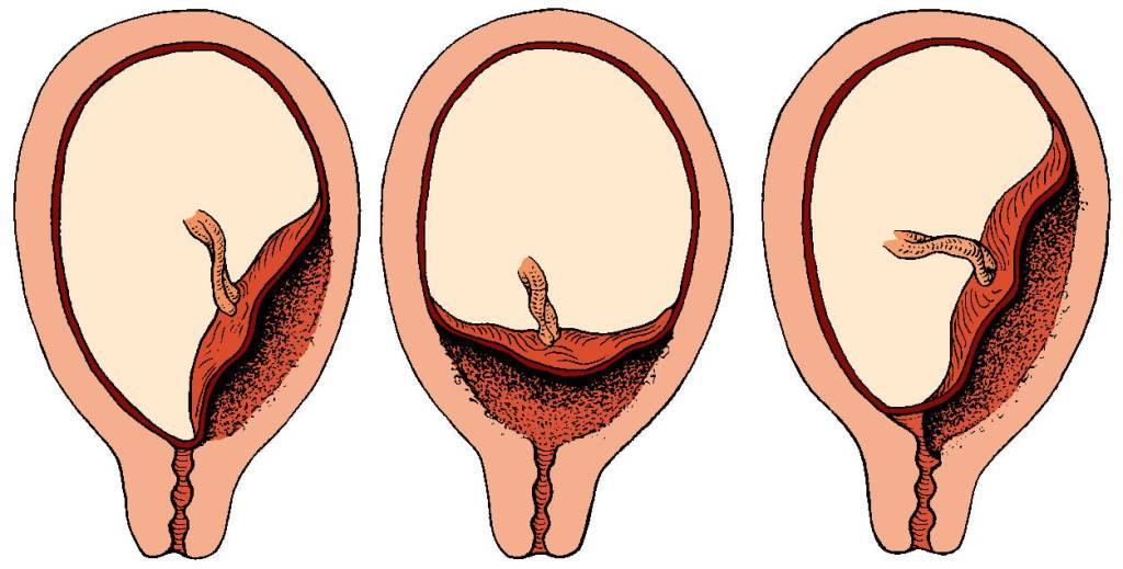 Гипертонус матки при беременности: причины, возможные последствия и способы снижения тонуса