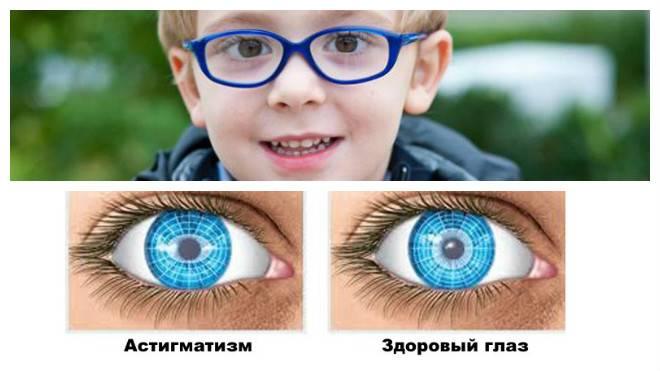 Гиперметропический астигматизм у детей (дальнозоркий): причины, симптомы, лечение, виды (сложный, простой, обоих глаз), мнение комаровского