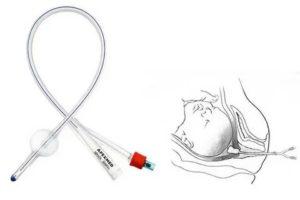 Катетер для раскрытия шейки матки перед родами
