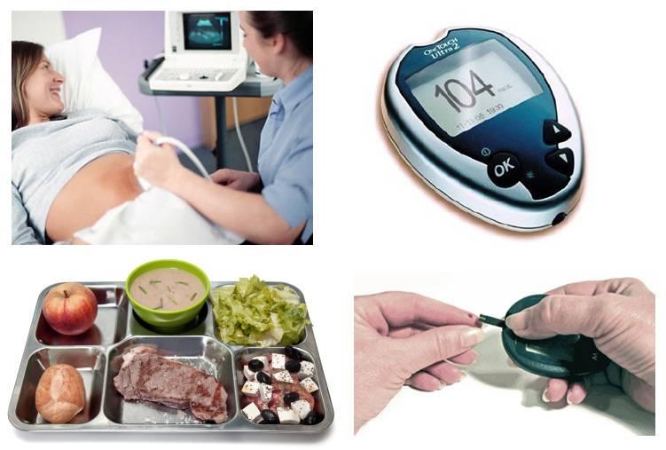 Можно ли при сахарном диабете иметь детей?
