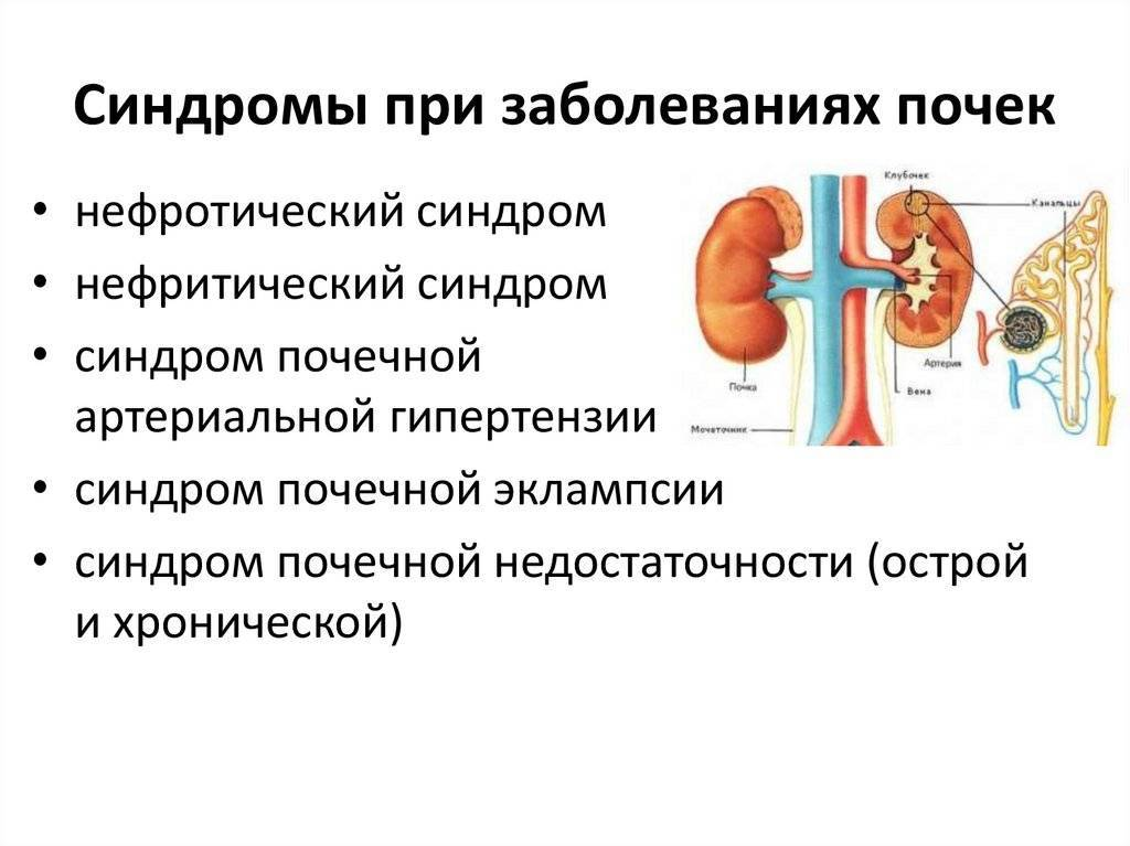 Доктор комаровский про нейрогенный мочевой пузырь, частое мочеиспускание и пиелонефрит, другие инфекции мочевыводящих путей: причины, симптомы и лечение