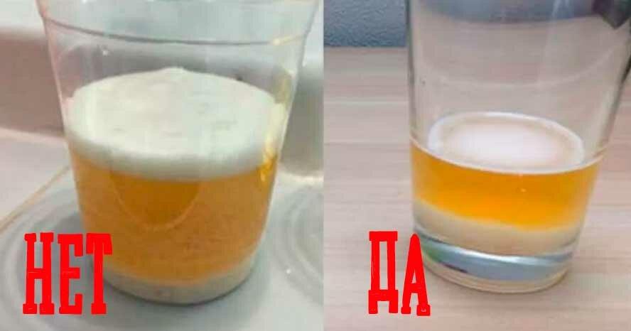 Можно ли пить разбавленную соду от изжоги при беременности?