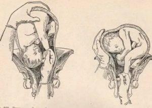 Наружный акушерский поворот плода на головку при тазовых предлежаниях (по б.а. архангельскому)