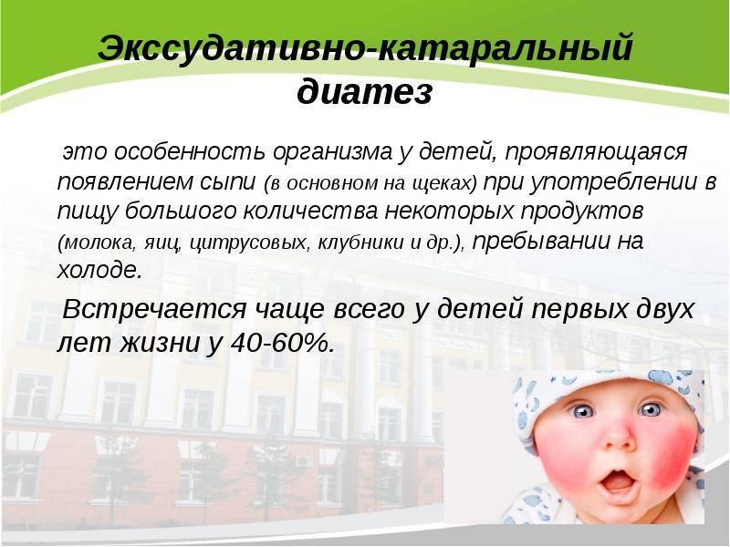 Экссудативно-катаральный диатез у детей: диагностика, лечение и ванны