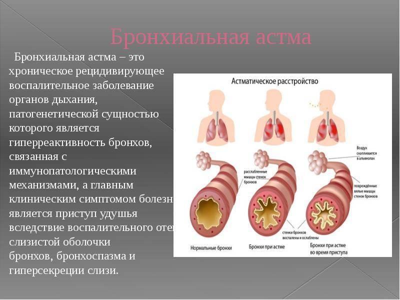 Как определить бронхиальную астму у ребенка?