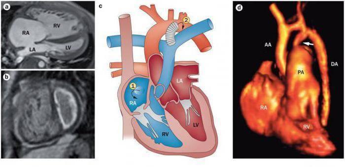 Гипертония у детей: причины, симптомы, норма и лечение
