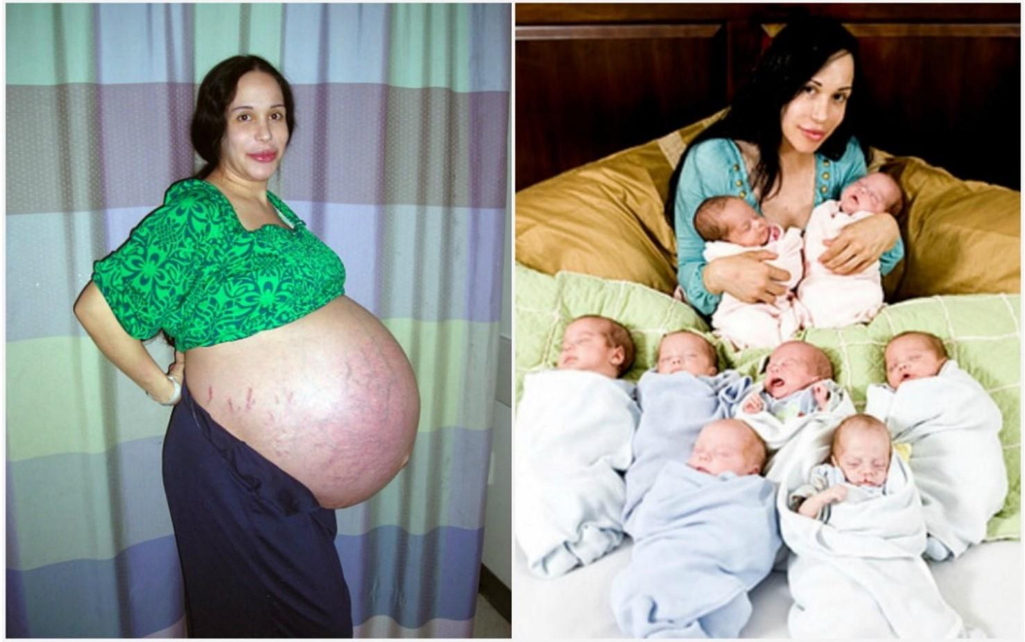 Беременность в 38-39 лет: можно ли рожать после 36 и каково мнение врачей? беременность в 36 лет: мнение врачей