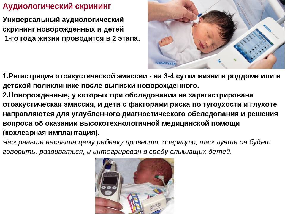 Аудиологический скрининг новорожденных: как проводится, фото, расшифровка результатов