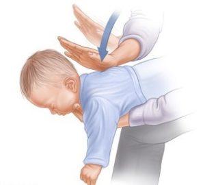 Пять минут на спасение. что делать, если ребенок подавился?