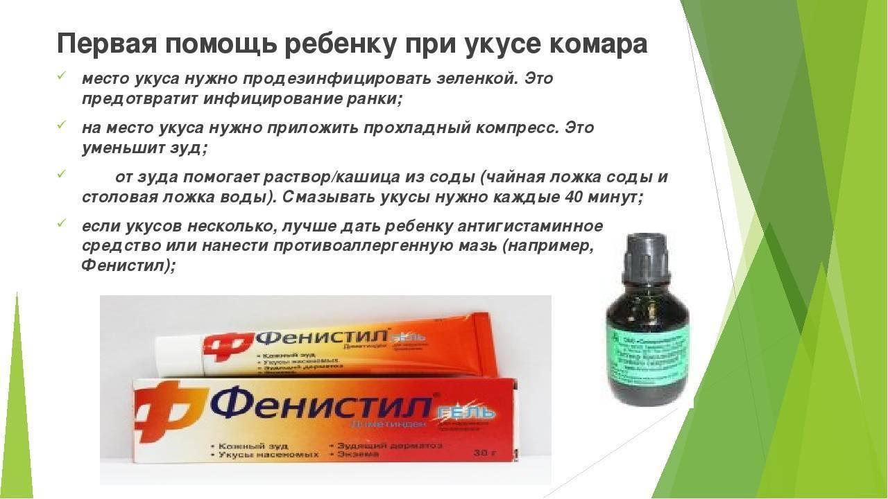 Укус комара: как снять отёк, лечение, помощь детям