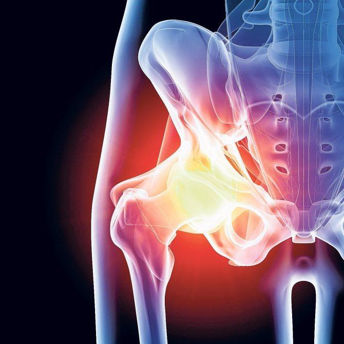 Артрит у детей (31 фото): симптомы и лечение, причины реактивного, ревматоидного, ювенильного и детского артрита коленного сустава