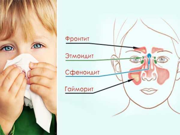 Гайморит у ребенка. причины, симптомы, лечение и профилактика гайморита   здоровье детей