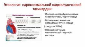 Синусовая тахикардия у ребенка: причины, симптомы, лечение, осложнения