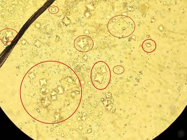 Оксалаты в моче у ребенка, норма и что значит в моче у ребенка повышены оксалаты, симптомы и причины оксалатурии