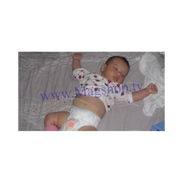 Пластырь для пупочной грыжи для новорожденных - применение, действие!