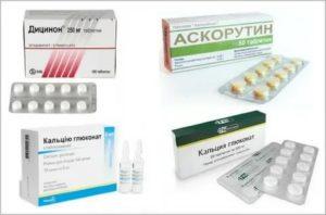 Кровоостанавливающие таблетки при месячных: обзор лучших средств