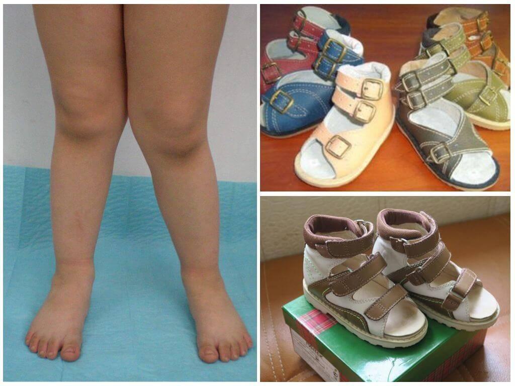 Как правильно подобрать ортопедическую обувь ребенку?
