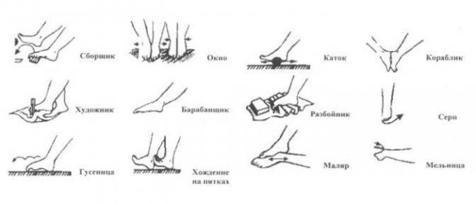 Вальгусная деформация коленных суставов у взрослых и детей: причины, лечение