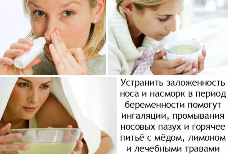 Насморк при беременности. способы лечения заложенности носа