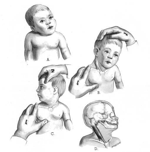 Массаж при кривошее у грудничков