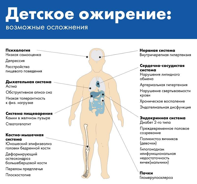 Ожирение у детей: подростков, 2 степени, лечение, причины, профилактика, проблема, формы