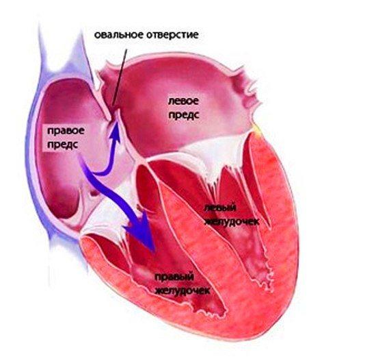Открытое овальное окно в сердце у ребенка: что это такое, причины, как лечить