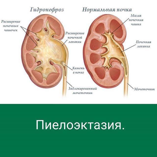 Пиелоэктазия почек - что это такое, симптомы и лечение