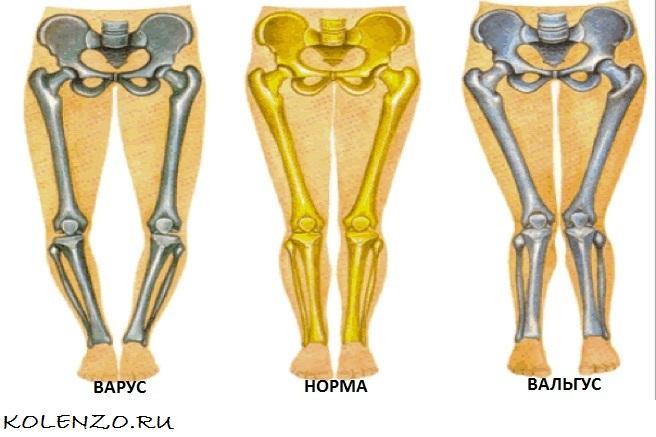 Что такое вальгусная деформация коленных суставов: причины у детей и взрослых и надежные методы лечения