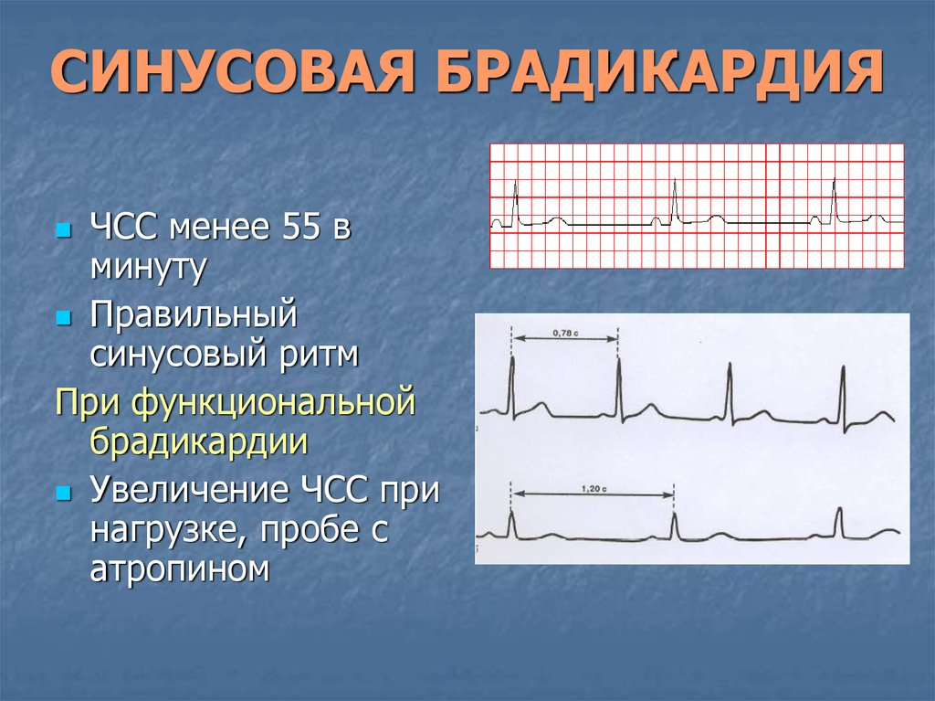 Брадикардия сердца у ребенка: что это такое, симптомы и лечение