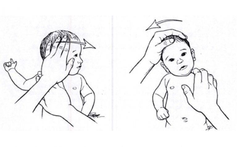 Кривошея у младенца: что это такое и как лечится