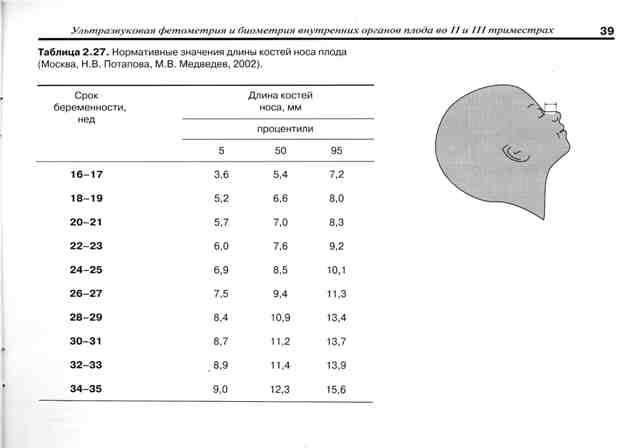 У плода гипоплазия носовой кости: что это значит, какие нормы с 12 недели беременности в таблице?