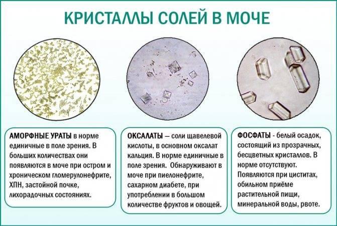 Оксалаты в моче у ребенка: комаровский о причинах оксалурии у детей, диета