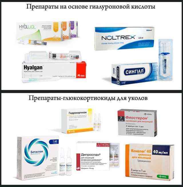 Нестероидные противовоспалительные препараты: список лекарств