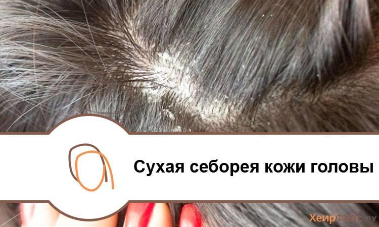 Перхоть у ребенка 10 лет: причины и лечение, трубчатая на голове