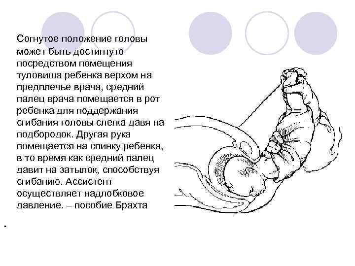 Как перевернуть ребенка в животе: упражнения и способы / mama66.ru