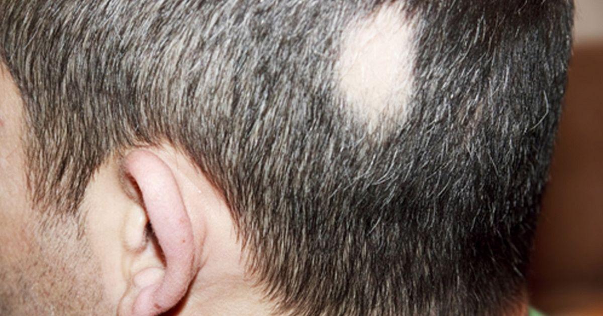 Очаговая, гнездная алопеция у мужчин и женщин, причины и лечение очагового облысения