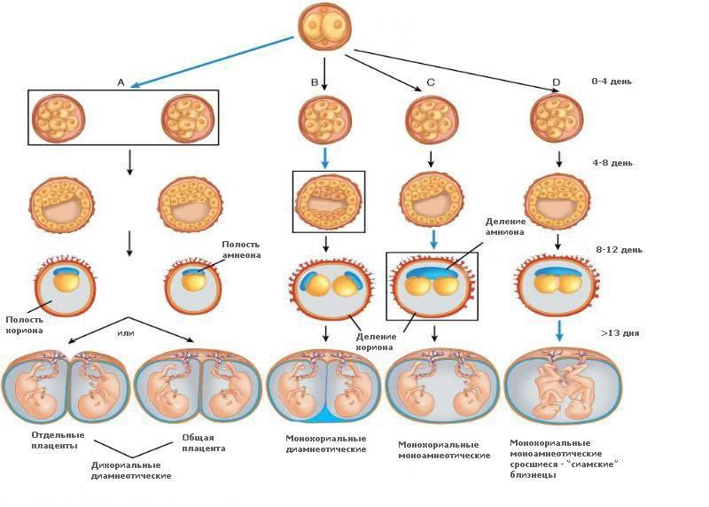 Анэмбриония одного из плодных яиц при двойне - здоровый ребенок