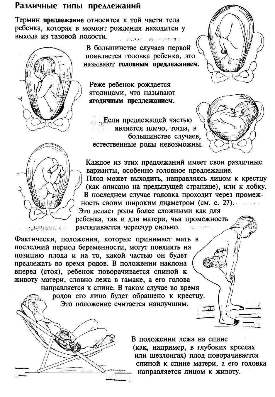Упражнения чтобы ребенок перевернулся головой вниз при тазовом предлежании: как перевернуть ребенка в головное положение – гимнастика для беременных для переворота плода