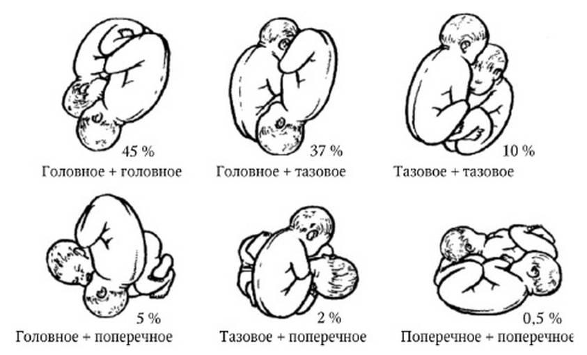 Многоплодная беременность - вероятность, причины, признаки, диагностика, осложнения, отзывы