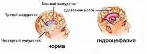 Гидроцефалия - признаки, симптомы, причины, диагностика и способы лечения заболевания