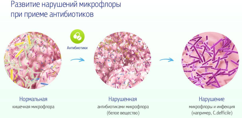 Лечение дисбактериоза у ребенка после антибиотиков